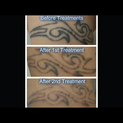 Laser Tattoo Removal: What happens to the ink?