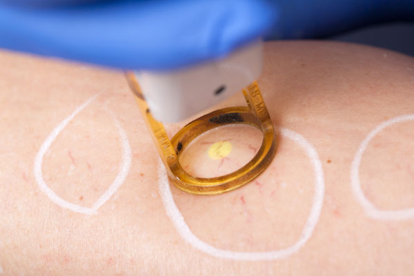 Eliminating Spider Veins With Laser