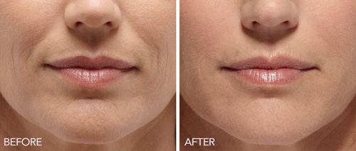 Microneedling Portland, OR - Before & After