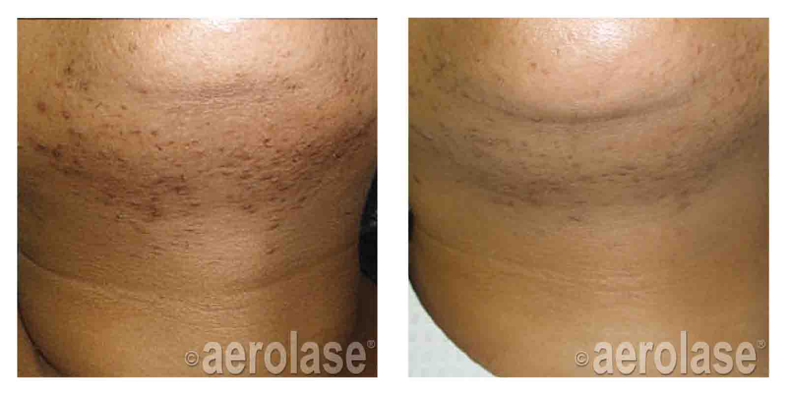 Small Area Laser Hair Removal Portland Or Redimedi Laser Skin