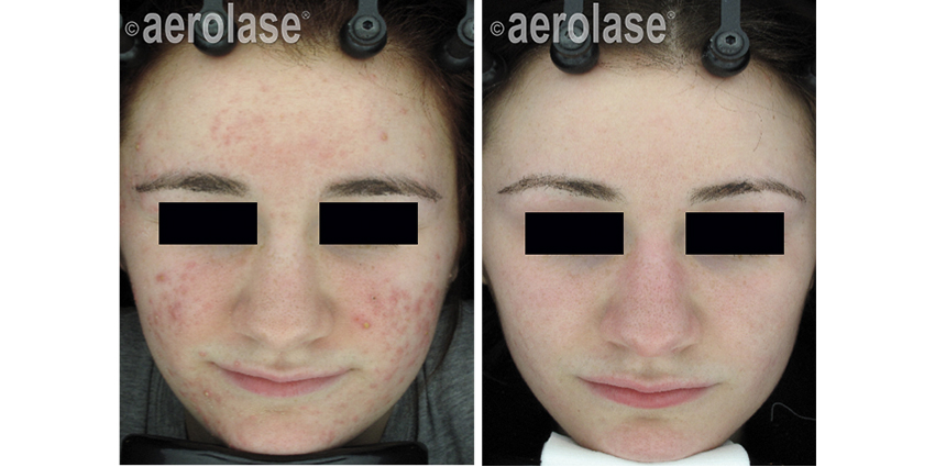 Aerolase Acne Treatment Portland, OR