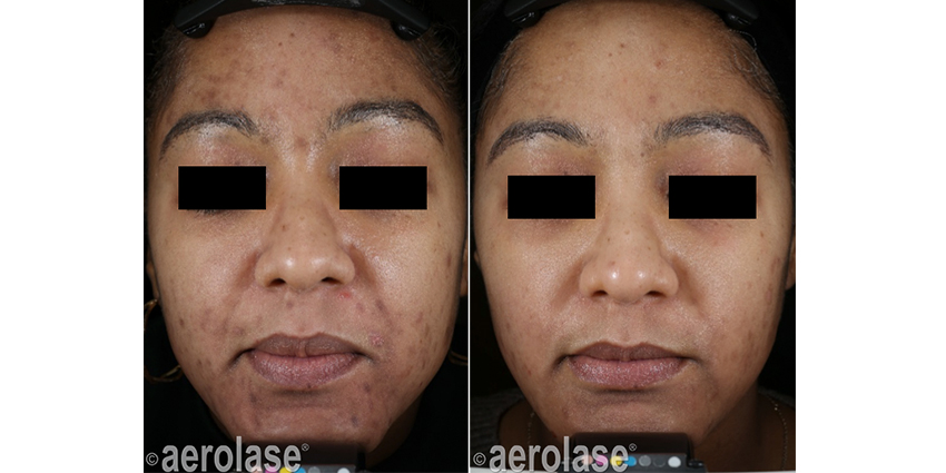Aerolase Acne Treatment Portland, OR - Before & After