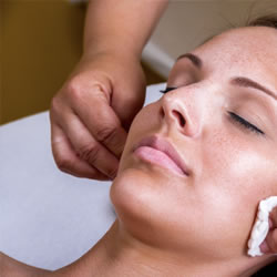 How do chemical peels work?