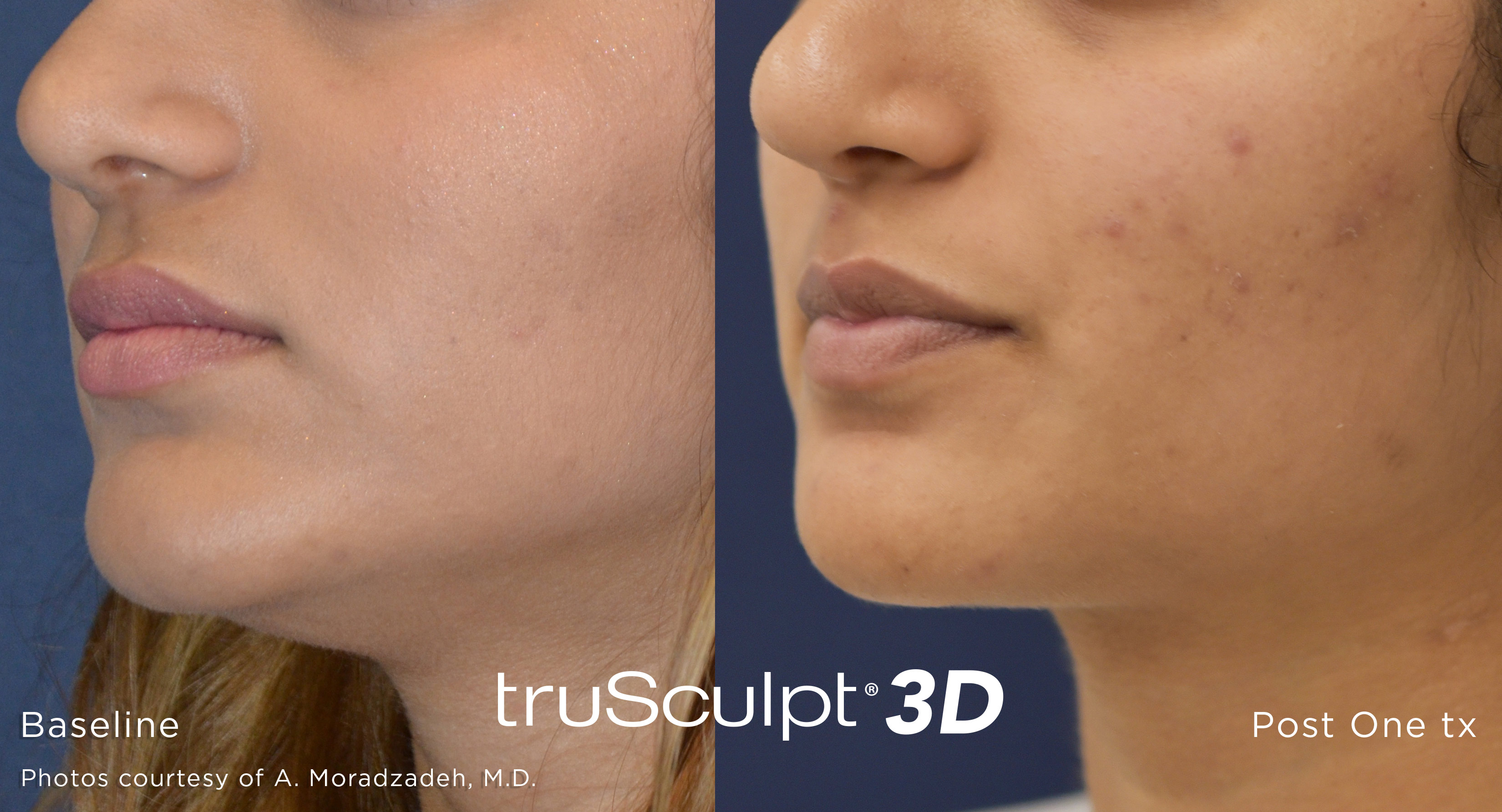 truSculpt 3D Before and After