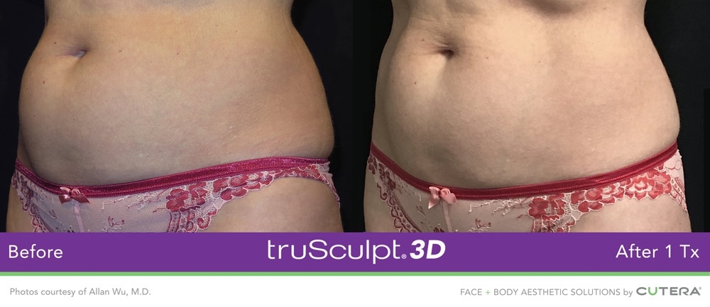 Before and After – Fast fat loss with truSculpt 3D