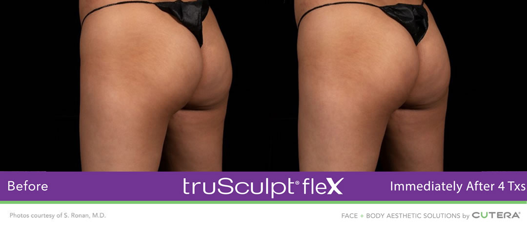 truSculpt Flex Before and After