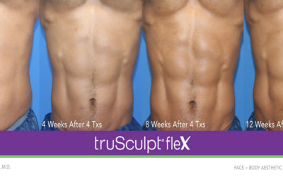 truSculpt Flex – Redefining Muscle Sculpting